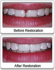 Dental Bonding