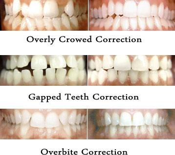 A Smile Time Machine Adult Orthodontics Dental Group